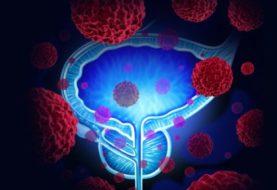 Radioterapia con quimioterapia disminuye algunos tipos de cáncer